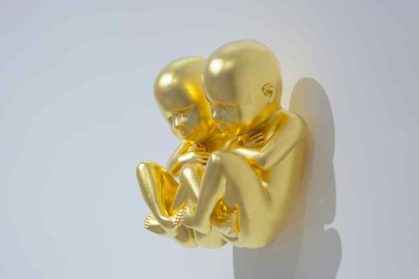 Side view close-up - Parallel Universe, 2014 by Joseph Klibansky